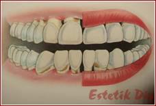 Diş Eti Çekilmesi Hastalığı ve Tedavisi, Periodontoloji